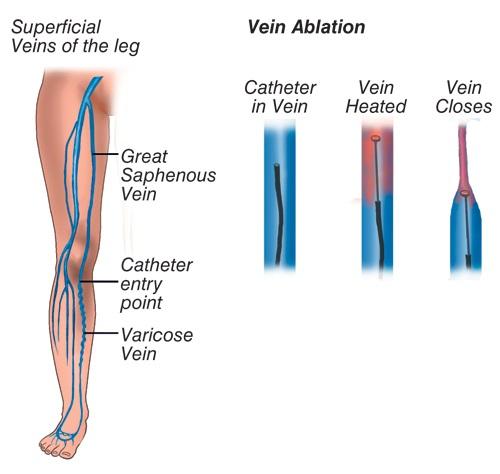 rfa treatment for varicose veins